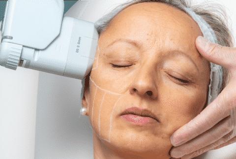 HIFU tretman zatezanja lica